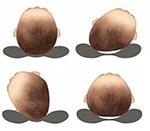 Разные варианты искривления формы головы
