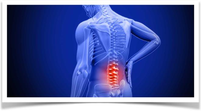 Боль в пояснице показано на скелете