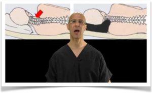 Правильное положение головы на подушке при шейном остеохондрозе
